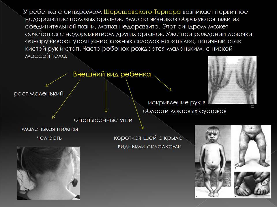 Презентация на тему синдром клайнфельтера